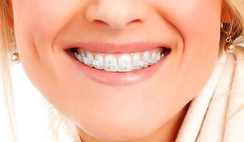 Ortodoncia en Ced Chile